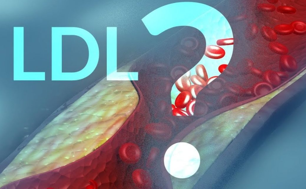 LDL Kolesterol Nedir?